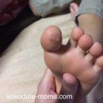 足の親指の裏にイボ2(注:症状の画像あり)