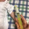 【生後3ヶ月】~第1回手術に向けて~