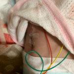 横隔膜ヘルニア、臍ヘルニア 修復手術